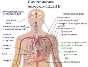 симптоматика лихорадки денге